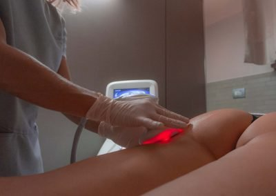 Estetica Beauty Club Radiofrequenza corpo